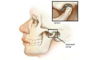 Артроз челюсти лечение народными средствами