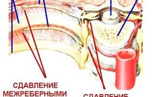 Межпозвоночная невралгия симптомы и лечение
