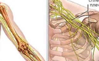 Невралгия плеча симптомы и лечение