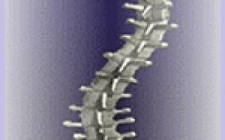 Как делают рентген позвоночника при сколиозе