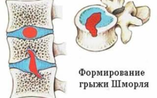 Что такое грыжа шморля позвоночника