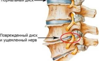 Межпозвонковый остеохондроз грудного отдела позвоночника