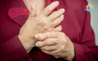 Последствия ревматоидного артрита если не лечить
