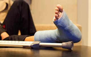 Упражнения для разработки сустава после перелома лодыжки