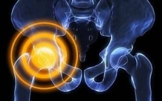 Болит нога в тазобедренном суставе при ходьбе