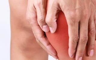 Лечение артроза в нижнем новгороде