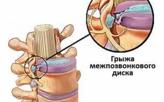 Как вылечить грыжу без операции
