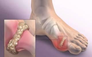 Для лечения острого подагрического артрита используют