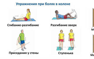 Лечебная физкультура при артрите коленного сустава