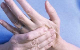 Обострение ревматоидного артрита лечение препараты