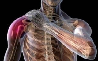 Плексит плечевого сустава лечение медикаментами