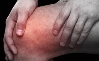 Подагрический артрит коленного сустава симптомы и лечение