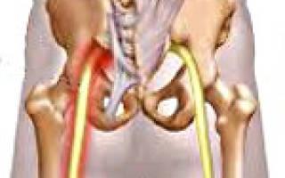 Неврит седалищного нерва симптомы и лечение