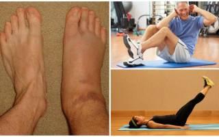 Упражнения при артрозе голеностопного сустава