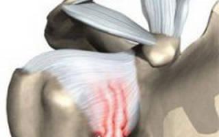 Дипроспан при плечелопаточном периартрите отзывы