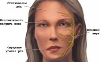 Неврит лицевого нерва симптомы и лечение у детей