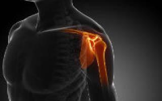 Импичмент синдром плечевого сустава это
