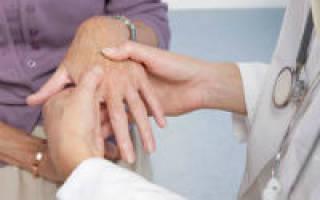 Артрит кистей рук лечение в домашних условиях