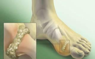 Лечение артроза пальцев стопы ног