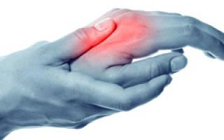 Сильно болят суставы кистей рук и опухают что делать