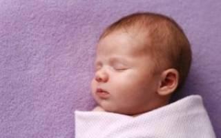 Причины пупочной грыжи у новорожденных