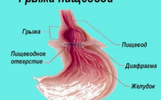 Ущемление грыжи пищеводного отверстия диафрагмы симптомы