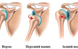 Комплекс упражнений на плечевой сустав после вывиха