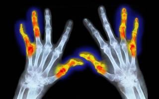 Ревматоидный артрит серопозитивный код мкб