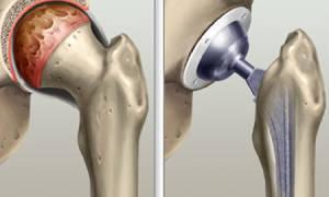 Комплекс упражнений после операции на тазобедренном суставе