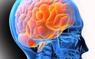 Что лечат в отделении неврологии