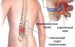 Препараты для лечения грыжи поясничного отдела позвоночника