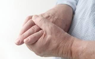 Болят суставы рук и ног что делать чем лечить таблетки