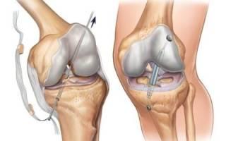 Пластика крестообразной связки коленного сустава