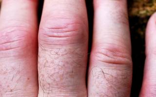 Опухают суставы пальцев рук причины
