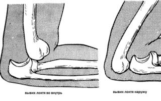 Отек локтевого сустава причины лечение