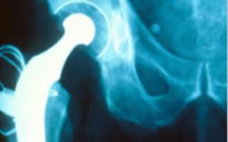 Влияние погоды на ревматоидный артрит