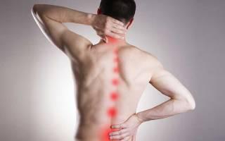 Остеохондроз с корешковым синдромом что это такое