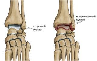 Артрит голеностопа симптомы и лечение