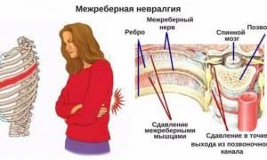 Невралгия симптомы грудного отдела с левой стороны лечение