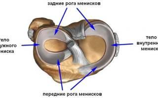 Задний рог медиального мениска коленного сустава