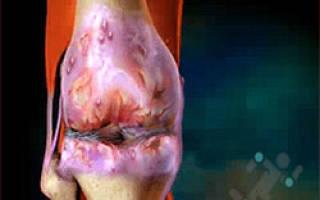 Новые методики в лечении артроза