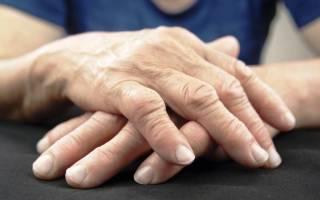 Инфильтрат в легких на фоне ревматоидного артрита