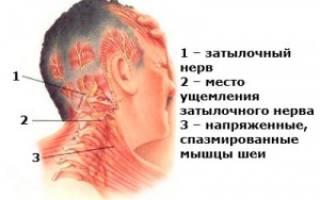 Лечение невралгии затылочного нерва медикаментами