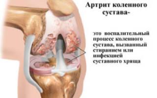 Как лечить артрит правого колена