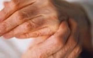 Полиартрит симптомы лечение диагностика фото