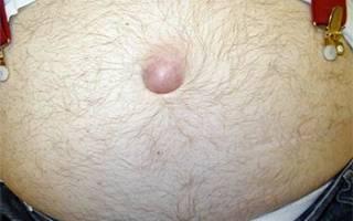 Пупочная грыжа у мужчин симптомы фото