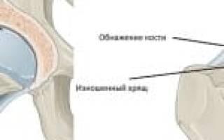 Народные средства от артроза тазобедренного сустава