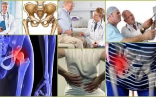 Какой врач лечит тазобедренный сустав