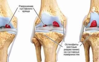 Клинические рекомендации по лечению остеоартроза