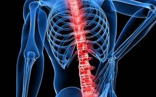 Мазь от невралгии и болей в спине